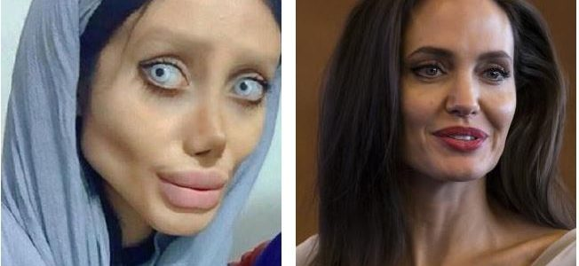 بالصور : إيرانية تتحول إلى مسخ بعد 50 عملية تجميل لتشبه أنجلينا جولي