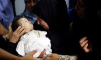 مركز حقوقي إسرائيلي يكشف نتائج التحقيق بإصابة طفل فلسطيني برصاصة في رأسه