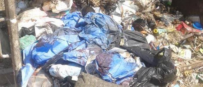 أعضاء بشرية في القمامة بمصر!