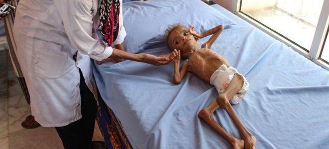 """مخزون الطعام في اليمن """"قد ينفد خلال شهرين"""""""