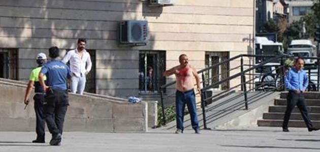 أعراض الانهيار الاقتصادي تبدأ في تركيا.. مواطن يجرح نفسه بموس حلاقة ليقابل مسئول