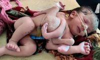 ولادة طفلة بأربع أرجل و3 أياد