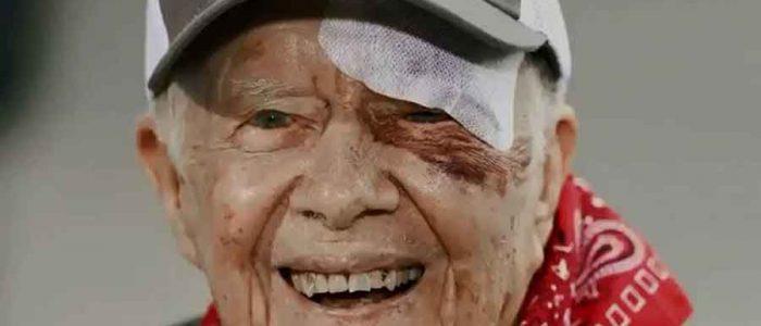 إصابة الرئيس الأمريكى الأسبق جيمى كارتر بنزيف فى المخ ونقله للمستشفى